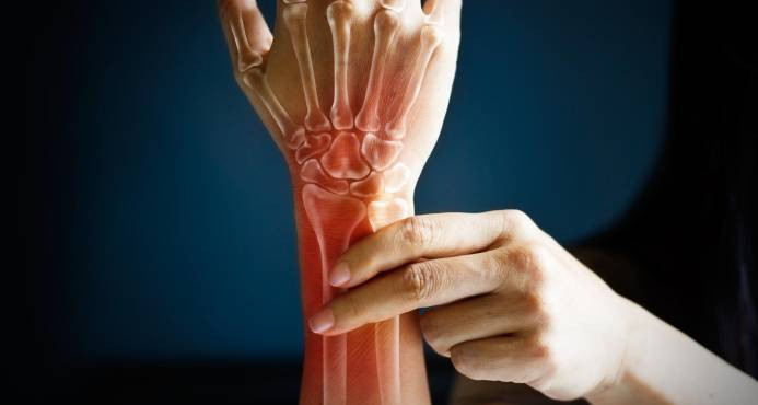 Resultado de imagen para ¿Padeces de artritis reumatoide? Debes cuidar tu corazón