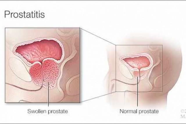 la glándula prostática causa micción