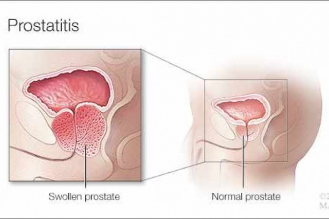antibiótico prostatitis crónica e